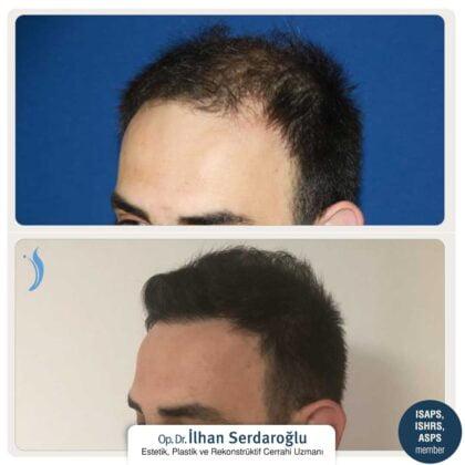 İlhan Serdaroğlu Saç Ekimi Öncesi ve Sonrası 1