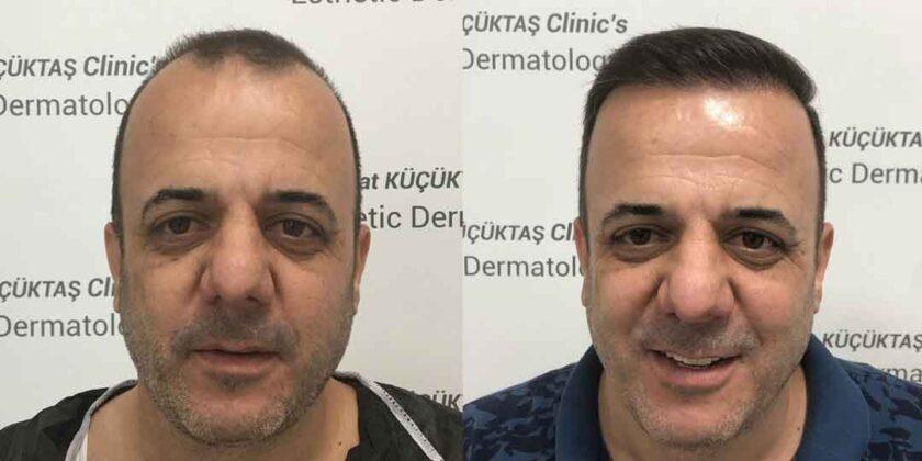 Dr. Murat Küçüktaş Saç Ekimi Öncesi ve Sonrası 2