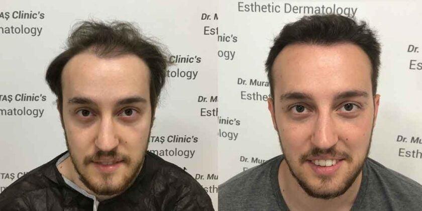 Dr. Murat Küçüktaş Saç Ekimi Öncesi ve Sonrası 4