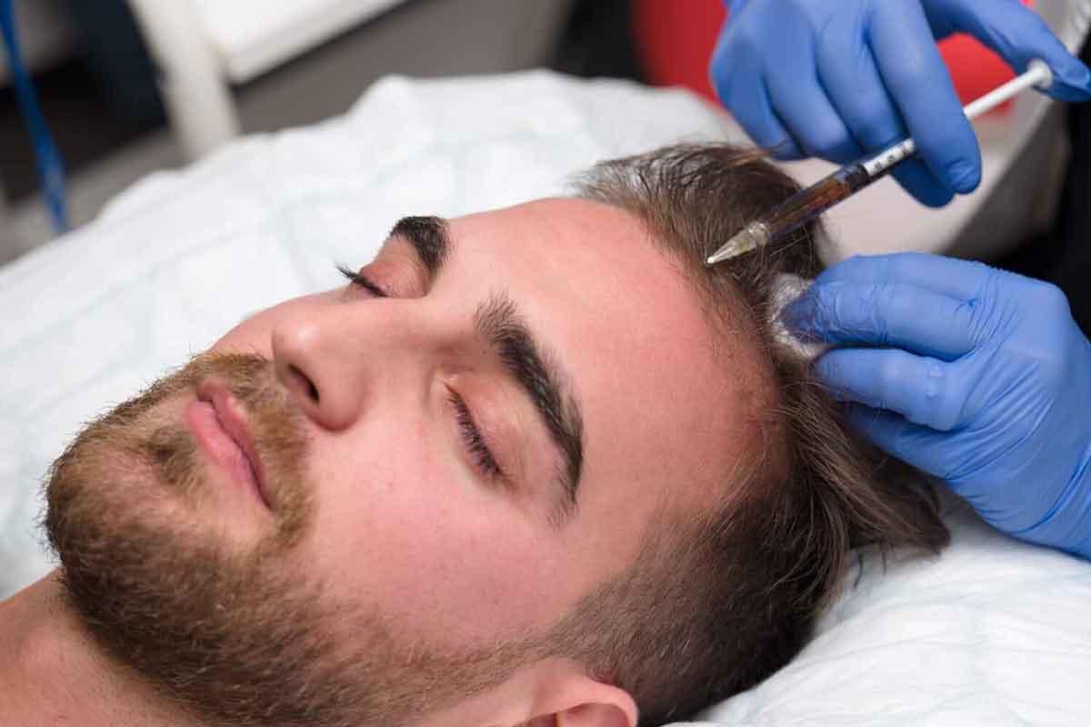 PRP ve Saç Tedavisi